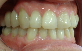 Patient after bridges at Eccleshill Dental
