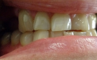 Patient before bridges at Eccleshill Dental