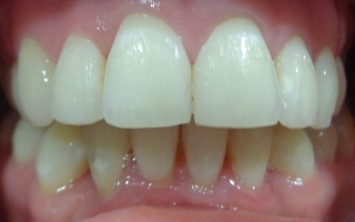 Patients teeth after Quick Straight Teeth and Tooth Whitening at Eccleshill Dental