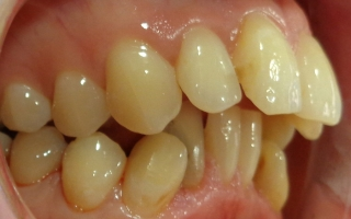 Patients teeth before Quick Straight Teeth and Tooth Whitening at Eccleshill Dental