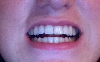 Patient after tooth whitening at Eccleshill Dental