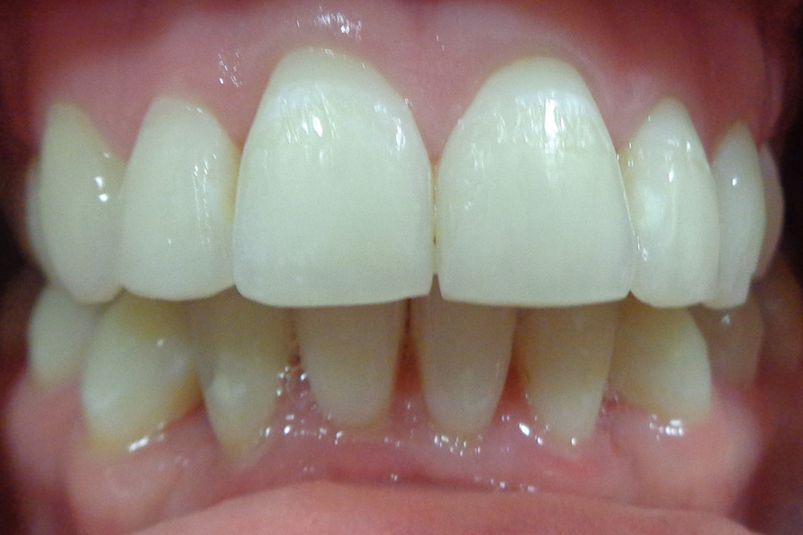 Teeth after treatment with Quick Straight Teeth Braces at Eccleshill Dental, Bradford