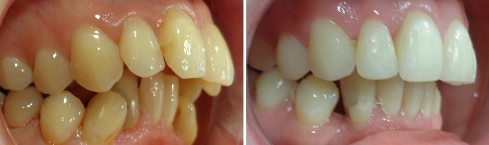 Before and after Quick Straight Teeth Braces at Eccleshill Dental, Bradford